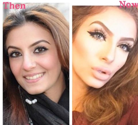 Faryal Makhdoom Before And After Surgery Pictures Amp Videos